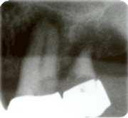 Endodontie Falldarstellung1
