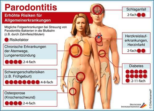 Parodontitis erhöhte Risiken für Allgemeinerkrankungen