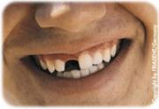 Gesunde Zähne - Die beste Visitenkarte