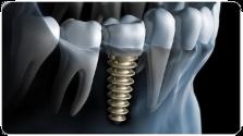 Seit wann gibt es moderne Zahnimplantate