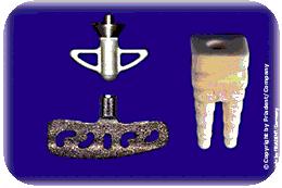 Woher kamen die ersten Zahnimplantate?