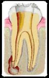 Das Innere des Zahns mit Entzündung an der linken Zahnwurzel