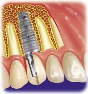 Schraube Implantat