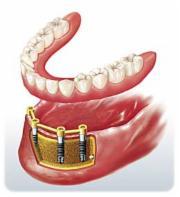 Aufbau eines Gebisses auf Implantaten