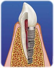 Schnittdarstellung Zahnimplantat